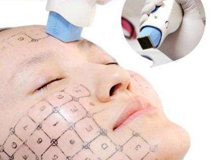杭州芬迪医疗皮肤美容医院除雀斑需要几次