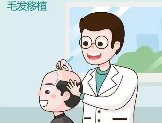 毛发移植效果好吗?长出新毛发后将不易脱落
