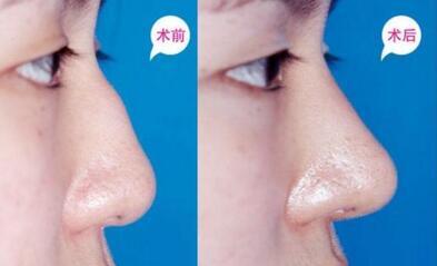 鼻头肥大鼻尖塌扁 自体软骨垫鼻尖是良方