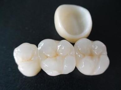 上海德伦种植牙效果如何 成熟的种植修复治疗手段