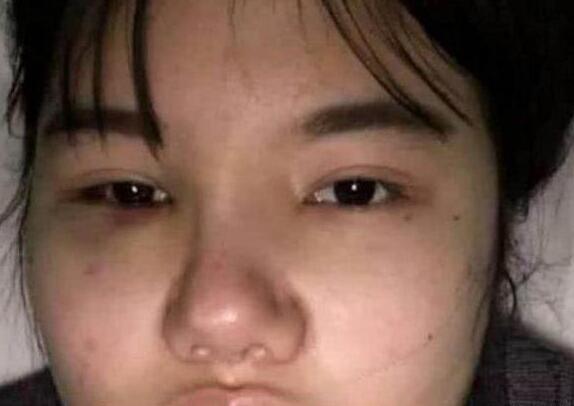 花百万整容成杨幂唯独鼻子没有动过刀 也让不少网友笑喷