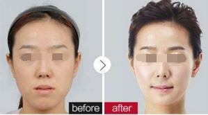 阜阳皮肤病医院做光子嫩肤 时光在你脸上停住了脚步
