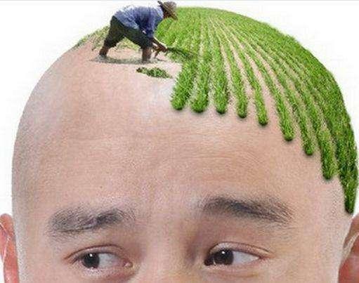 自体毛发移植 让秃顶的你也能迎来春天
