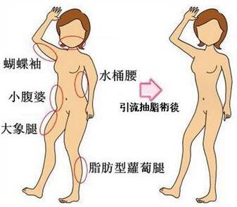 沧州京美医疗美容瘦手臂 打开减肥绿色通道