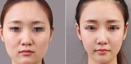 温州和平整形医院面部吸脂 不仅瘦脸还塑型
