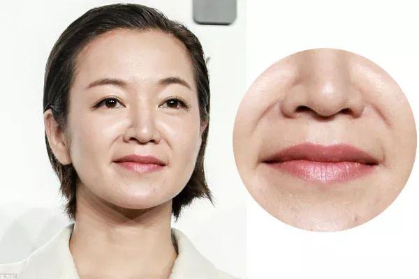 扬州中医院玻尿酸祛法令纹 成分吸代谢不残留