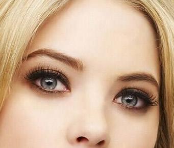 苏州星范卧蚕整形手术效果好 眼神魅惑够有异性缘