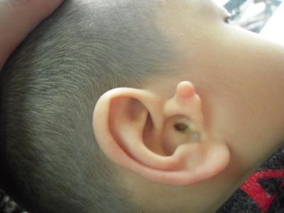大庆整形医院哪家好 副耳切除多久恢复