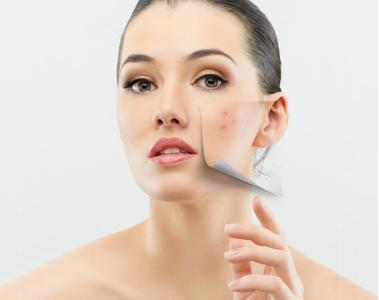 非手术的美容方法 射频美容助你冻龄的秘密