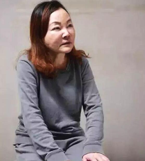 杜晓阳受贿整形 50万打造最美翘臀