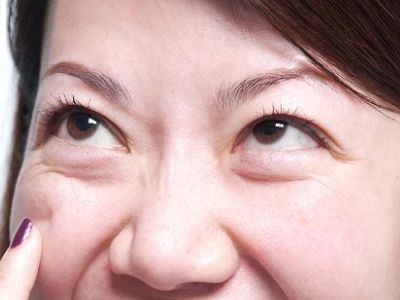 成都健丽去眼袋的方法有哪些 总有一种方法适合你