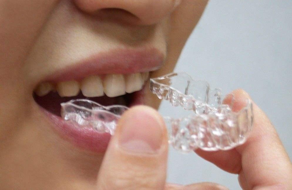 """合肥口腔医院地包天矫正手术 美丽从""""齿""""开始"""