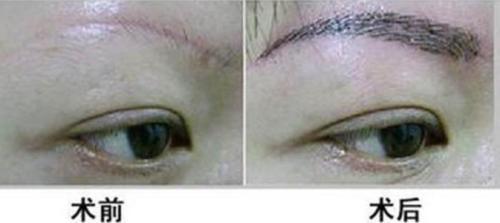"""眉部整形 让""""眉目传情""""表达更流畅"""