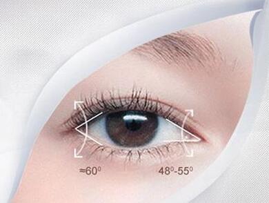开外眼角手术 最适合外眼角下垂或过高、眼裂横径短小