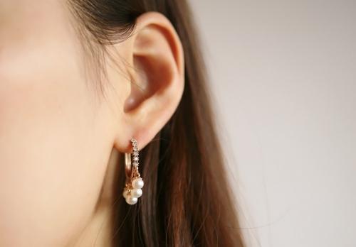 石家庄越然的杯状耳矫正有疤痕吗 给你最自然的娇耳