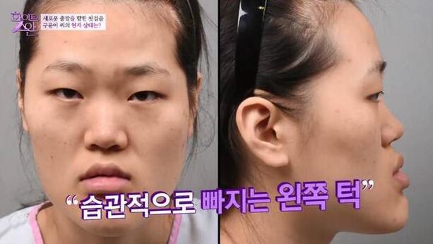 韩国整容丑女大翻身 网友:是同一人吗