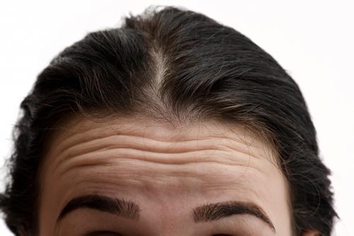 怎么消除抬头纹 最有效的除皱方法