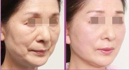 武汉恩吉娜玻尿酸除皱 肌肤瞬间变年轻