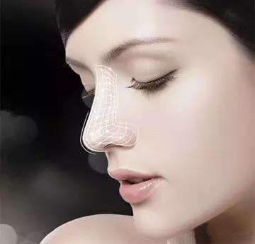 鼻翼肥大给脸部扣分 看看鼻翼缩小手术前后对比照片