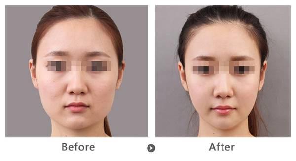 上海名媛医疗整形面部吸脂 微创伤的操作技术