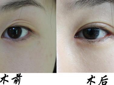 成都潘多拉整形双眼皮手术 改善八种眼部问题