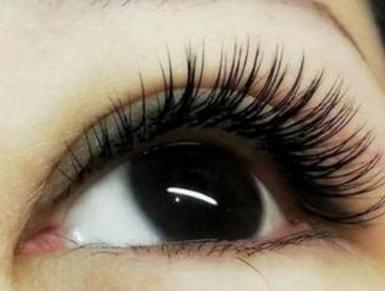 成都蓉雅整形外切法去眼袋 至少能维持15年