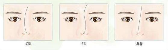 做歪鼻修复需要注意些什么