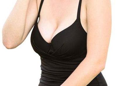 曲靖乳房下垂矫正医院哪家好 胸部整形价格表