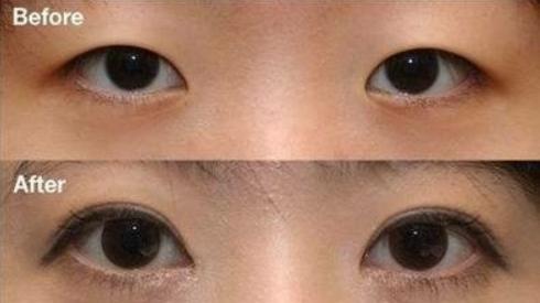 烟台王医生整形医院韩式微创双眼皮活动价3800 原价6800