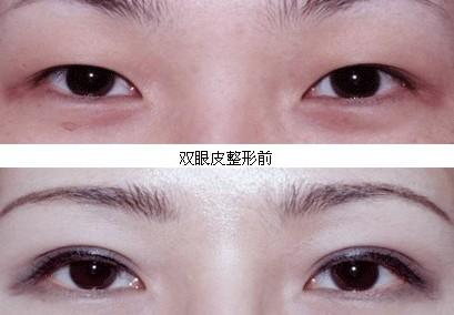 成都艺星整形埋线双眼皮 具有可恢复性