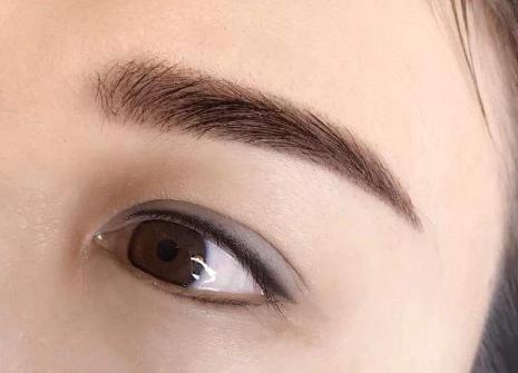 眉毛种植多少钱 术后多久能长出来
