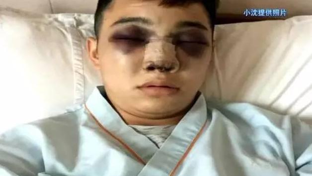 帅小伙做隆鼻手术 整成了熊猫眼
