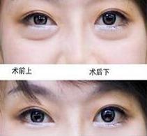 亳州市东方医院去除眼袋案例 重拾自信