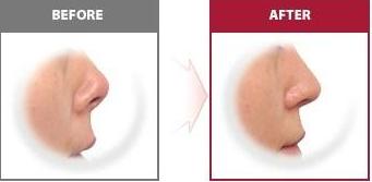 这几种鼻子做了整形,面貌改变很大