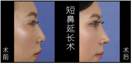 适合整形的鼻子分为以下几种 让鼻型更挺俏