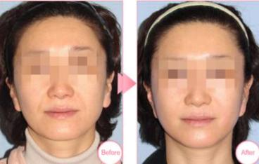 朝阳市康韵整形埋线面部提升案例 让你的肌肤更加紧致年经