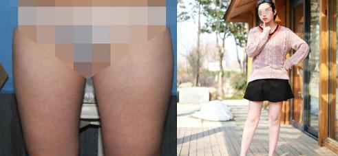 成都艾米丽整容医院大腿吸脂案例 走T台展现身材