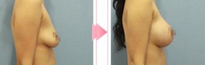 成都春天美容整形医院自体脂肪隆胸案例 颜值和身材具备