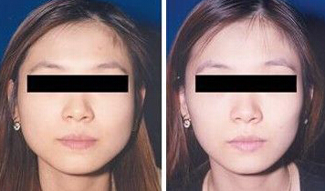 成都恩喜医学整容医院瘦脸针案例 瓜子脸可以这样雕刻