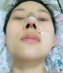 成都华颜国际整形医院鼻综合案例 让你的颜值大大加分