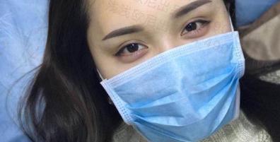 成都友谊医院纹眉案例 眉型精致更有型