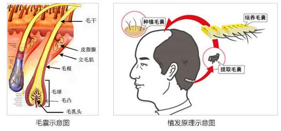 安徽维多利亚毛发种植中心植发原理