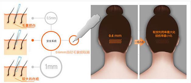 广西南宁华美毛发种植中心植发技术