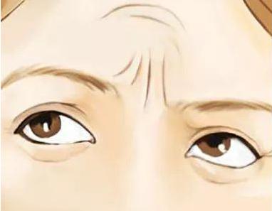 北京彤美医疗医院好吗 眉间纹怎么去掉