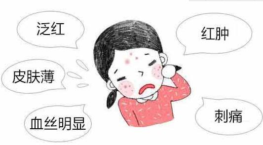 北京卫人医院怎么样 红血丝如何去掉