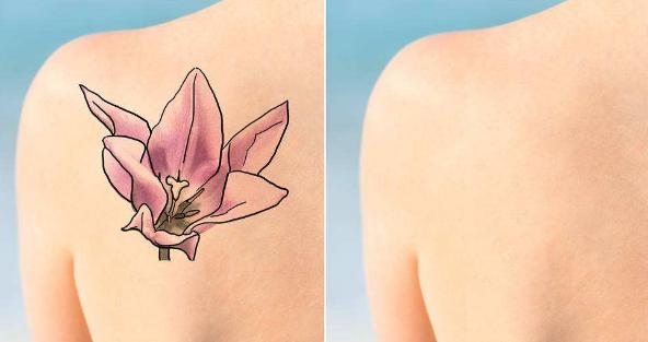 北京小忠丽格激光祛纹身需治疗几次