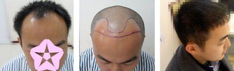植发医生丁浩技术好吗?真人案例来验证