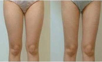 铂特丽门诊昆山价格表 吸脂瘦大腿多少钱