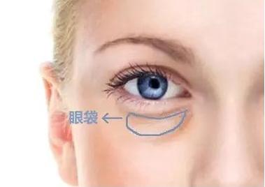 眼袋除皱哪种方法好