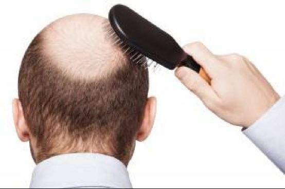 头发种植效果直接 比任何生发水都好使